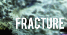 fracture-thumb-2015